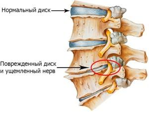 Причины, симптомы и лечение защемленного нерва в грудном и поясничном отделах позвоночника