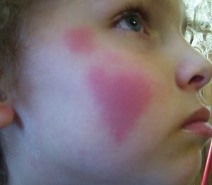 Холодовая аллергия у детей