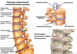 Что за заболевание остеохондроз и как с ним бороться?