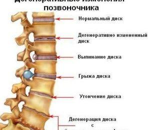 Какой бывает остеохондроз? Особенности и степени заболевания