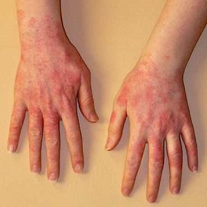 Сыпь и шелушение кожи