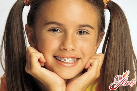 Детская стоматология - детский прикус