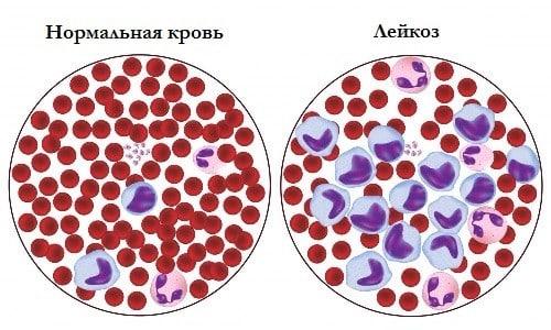 Состав крови при лейкозе