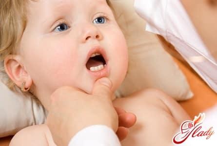 молочница во рту у малыша