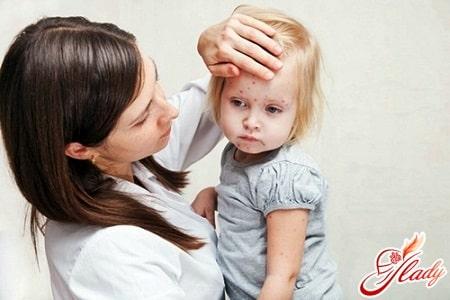 причины сыпи у ребенка на лице