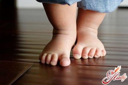 причины деформации стоп у ребенка