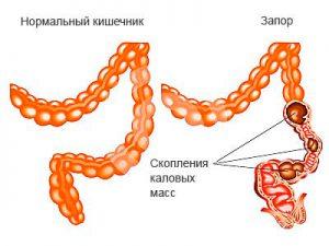 нормальный кишечник и запор
